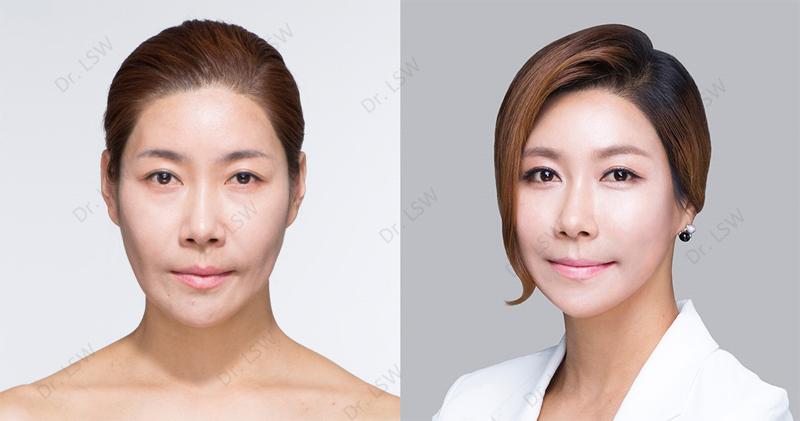 Testimoni Dr. Lee Soo Wook Whitening Glutathione